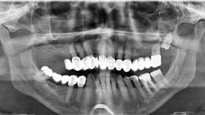 Implant basal bulgarie Pierre